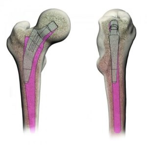 Bone Preserving Hip Replacement